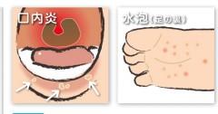手足口病の足、口