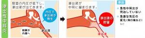 滲出性中耳炎の原因