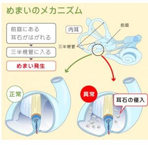 良性発作性頭位めまい症の解説図